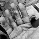 Blasen an den Fingern